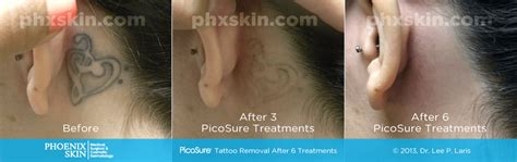 tattoo removal scottsdale picosure laser removal and scottsdale az