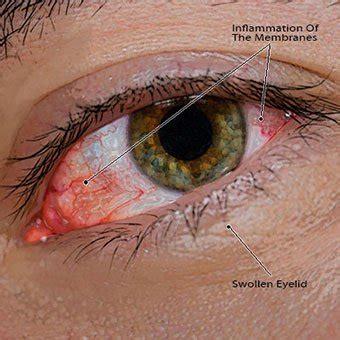 pink eye images pinkeye conjunctivitis treatment causes remedies symptoms