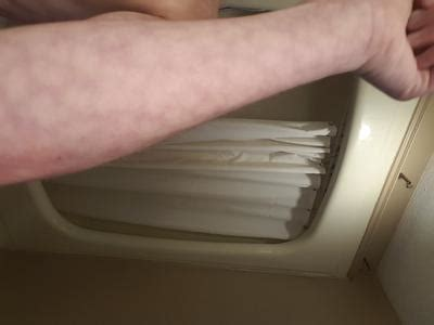 tattoo removal upminster red blotchy skin on arm what is it