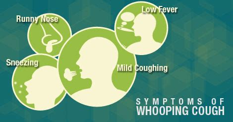 whooping couch symptoms signs symptoms of whooping cough