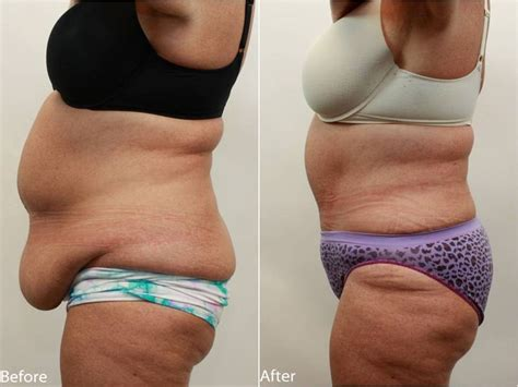 can you lose belly fat after c section get rid of the excess skin of your mid section more