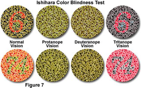 color blind types types of color blindness healthlob