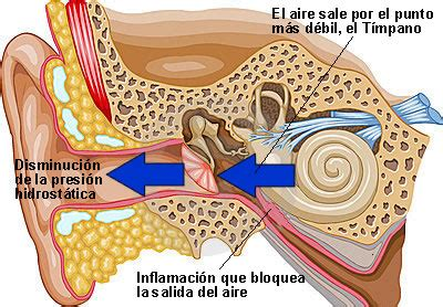 barotrauma orecchio interno gustavo s 193 nchez 502 lesiones temas 1 5