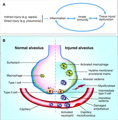 new cellular and molecular mechanisms of lung injury and human models of acute lung injury disease models