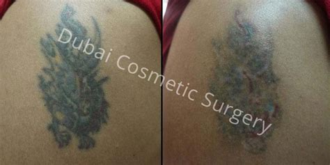plastic surgery tattoo removal cost circles treatment in dubai abu dhabi dubai