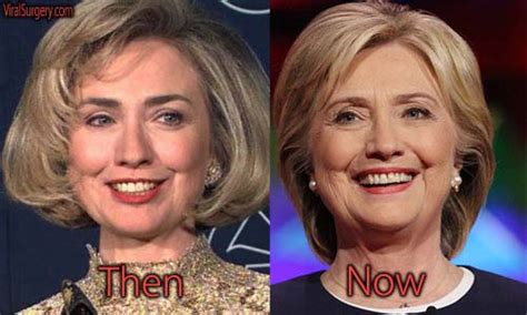 did hillary clinton have plastic surgery 2015 hillary clinton facelift 2013 hillary private email a