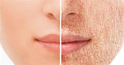 imagenes asquerosas en la piel recetas para tratar la piel seca en las distintas partes