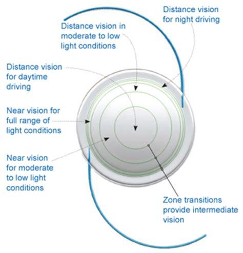 biofinity multifocal | lens saver