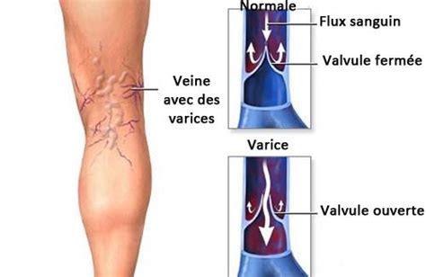 vene varicose interne jambes lourdes dites adieu aux jambes lourdes