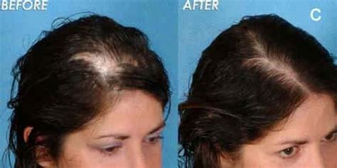 women hair loss before and after provillus natural hair provillus natural hair regrowth product reviews does