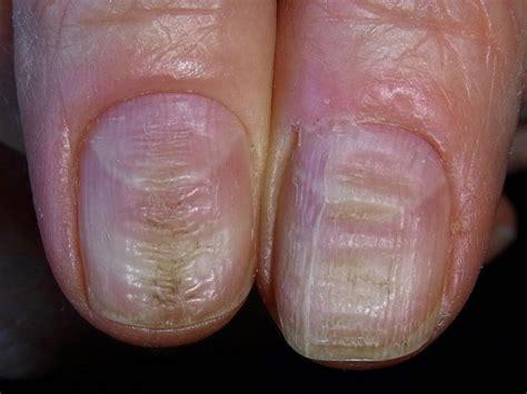 Fingernails Pictures