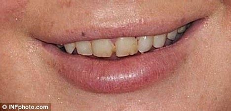 lindsay lohan emerges with stained, decaying teeth | daily