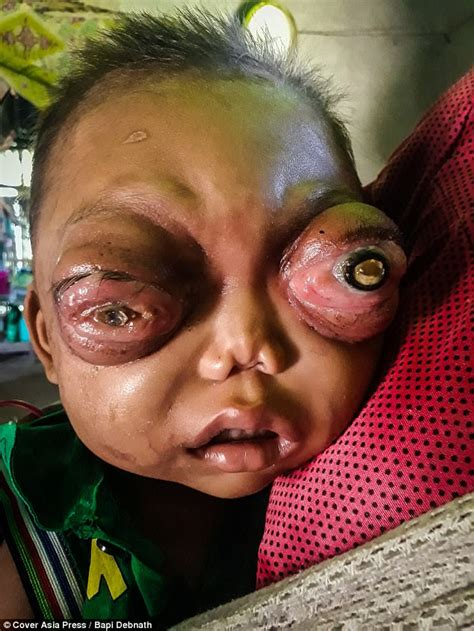 Eye Of Blind indian boy is going blind due to his protruding