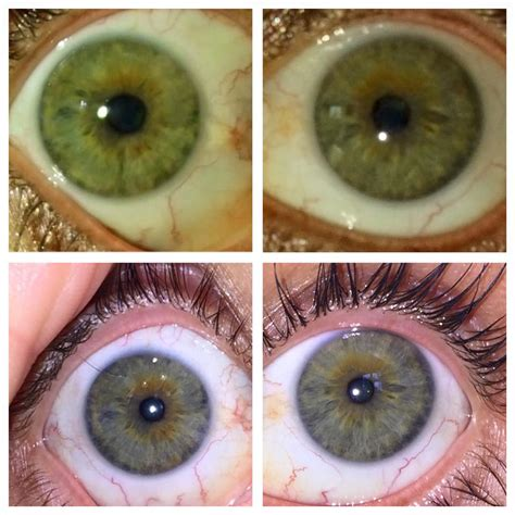 S Eye Color Changing After Detoxing by Louis Edward Iridology Service Charlottes 1