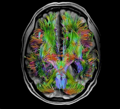 Moment Memory Brain what scientists now about repairing memories