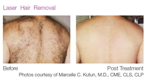 laser hair removal department of dermatology laser hair removal herron dermatology laser
