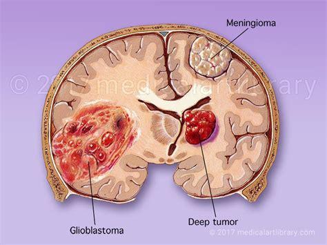 brain tumor diagram brain tumor glioblastoma meningioma library
