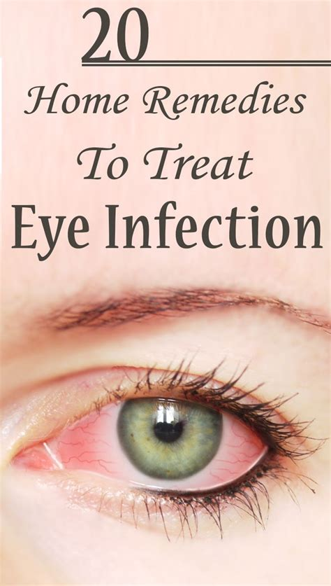 martin eye problem 441 best images about remedies on pinterest sinus