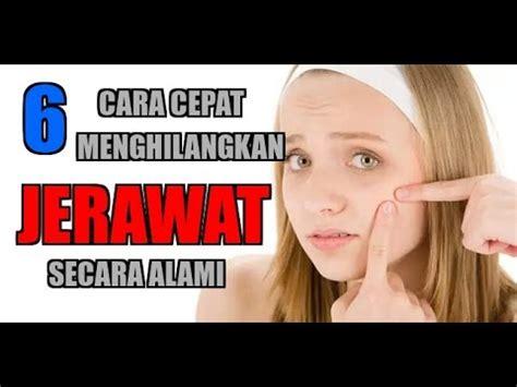 Promo Masker Wajah Jerawat Berminyak Komedo Flek jerawat flek komedo pemutih videolike