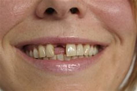 wann kommt welcher zahn zahnausfall ursachen berliner zahnarzt dr seidel