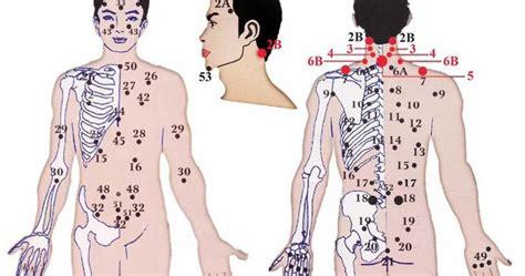 Murah Titik Bekam 40 Penyakit bekam sunnah
