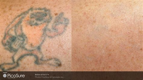 laser tattoo removal picosure picosure laser removal baltimore md