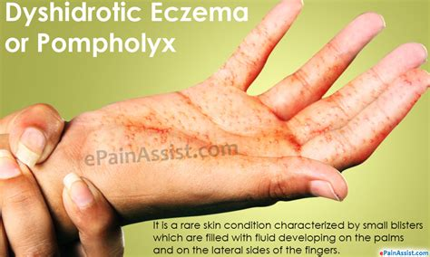 dyshidrotic eczema or pompholyx treatment home remedies