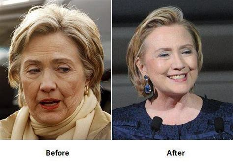 Did Hillary Clinton Get A Facelift | hillary clinton face lift surgery before and after photos