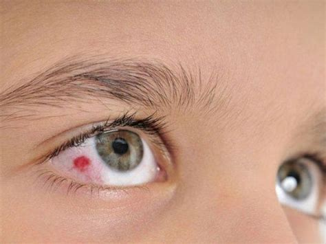 sangre en el ojo qu 233 hacer causas y remedios ella hoy sangre en el ojo qu 233 hacer causas y remedios ella hoy