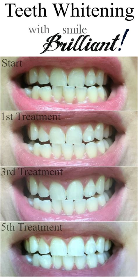 smile brilliant professional teeth whitening review