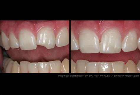 How Do You Fix A Chip In A Bathtub by Cosmetic Dentistry Before And After Pictures