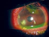 wildeyes colored contact lenses plano contacts to be devices
