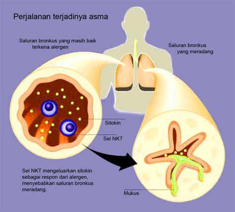 Obat Herbal Penyakit Asma Paling Uh Tanpa Efek Sing obat serangan asma obat serangan asma