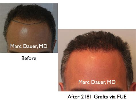 Los Angeles Hair Transplant Newhairstylesformen2014 Com | los angeles hair restoration and transplants los angeles