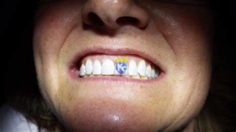 kc royals tattoos photo royals fan gets kc tooth bso