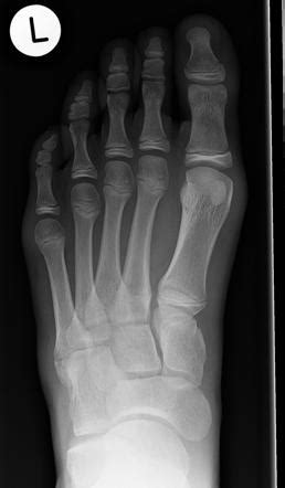 Base of 5th metatarsal fracture and apophysis | Image
