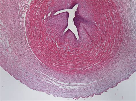 Spine After Section by Mesenchymal Stem Cells From Embryonic Tissues For Tissue Engineering Regeneration Of The