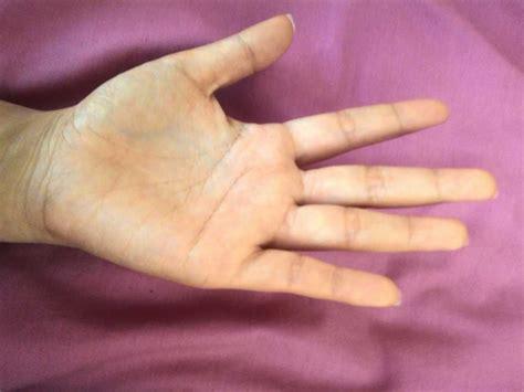 Jual Untuk Tangan Kasar by Cara Menghaluskan Telapak Tangan Yang Kasar