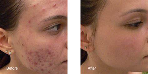 Harga Clean And Clear Acne Clearing Cleanser acne laser treatment los angeles blue light acne removal