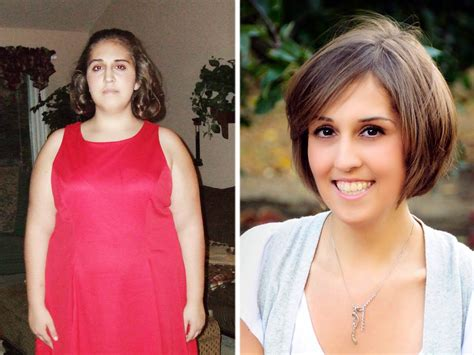 Richie Denies Gastric Bypass Surgery by Obese But Starving 12 Denied Weight Loss Surgery