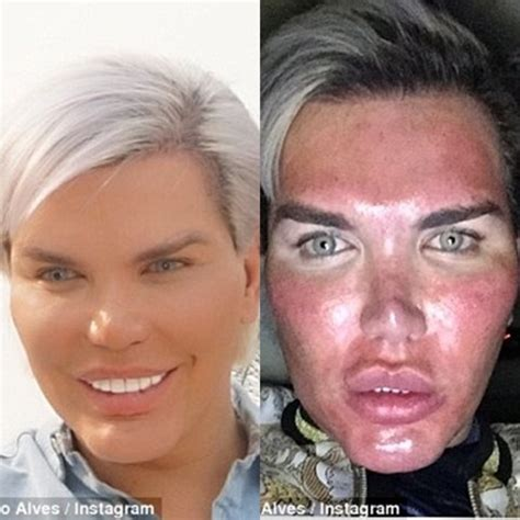 human ken doll before and my face is burning human ken doll who s had over 60