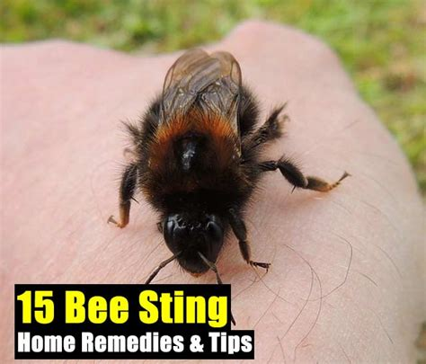 15 bee sting home remedies tips shtf prepping central