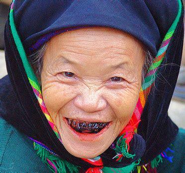 imagenes de negras sin dientes dientes negros