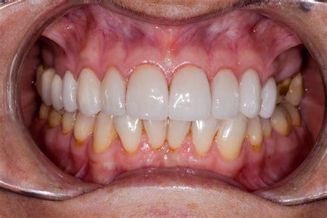 bridges  replace missing teeth blue court dental
