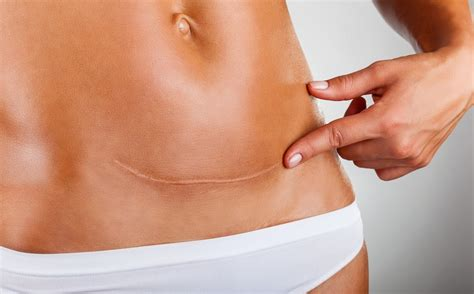 How After C Section minimizing scars after a c section advanced
