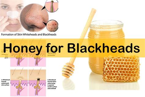 how to remove blackheads quickly with honey