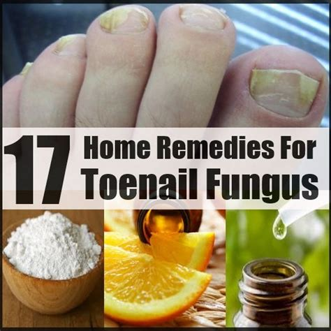 home remedy for nail fungus bukit