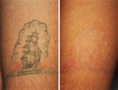 tattoo removal result expectations for laser removal results