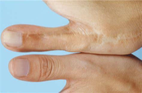 Finger Dan Thumb Originals the surgeons who make toes into thumbs the atlantic
