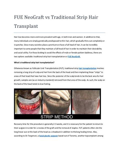 fue vs strip fue neograft vs traditional strip hair transplant